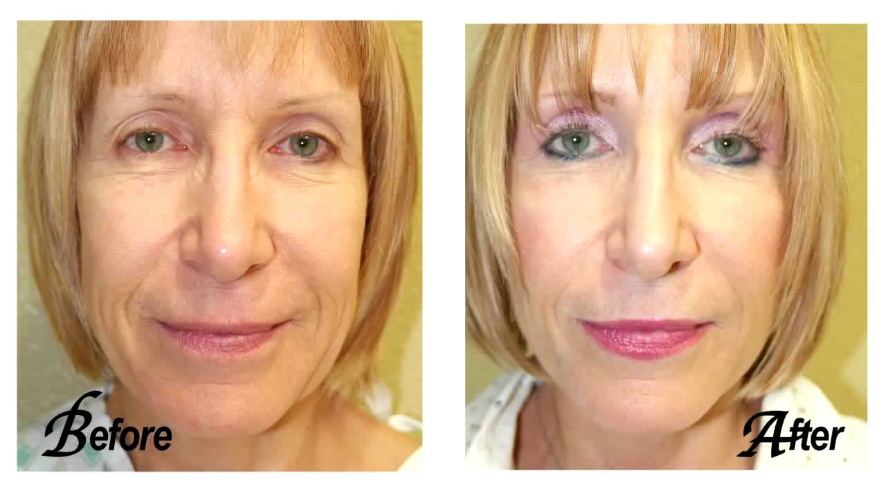plastic surgery sarasota fl photo - 1
