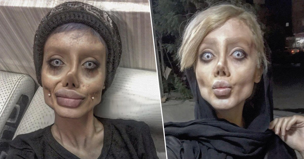 plastic surgery to look like angelina jolie photo - 1