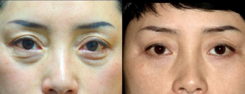 plastic surgery to remove bags under eyes photo - 1