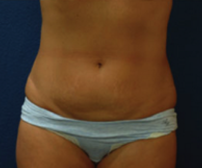 plastic surgery tummy tuck cost photo - 1