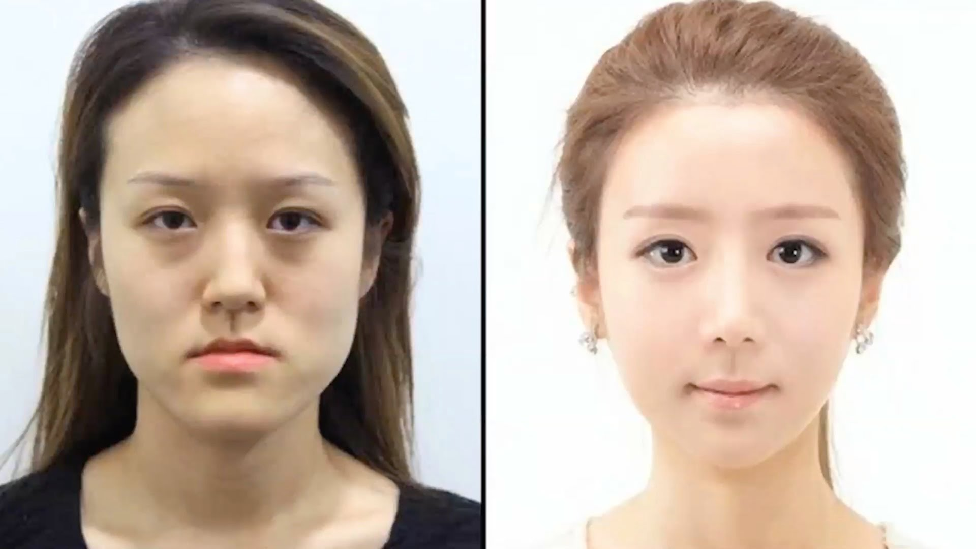 plastic surgery twins photo - 1