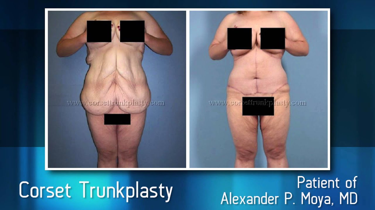 post bariatric plastic surgery photo - 1