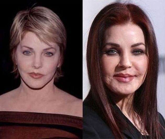 priscilla barnes plastic surgery photo - 1