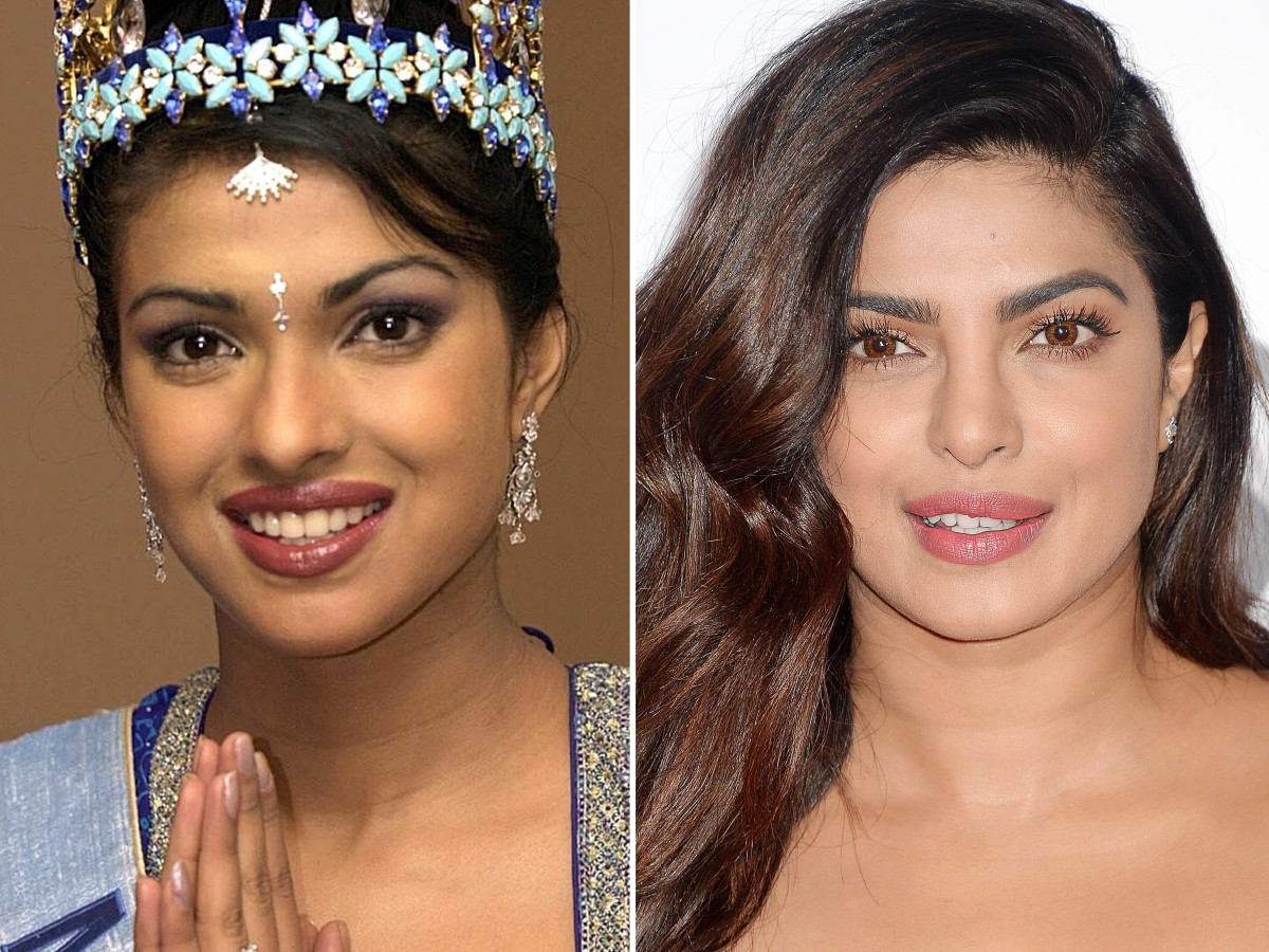 priyanka chopra before plastic surgery photo - 1