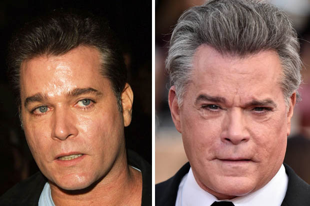 ray liotta plastic surgery photo - 1