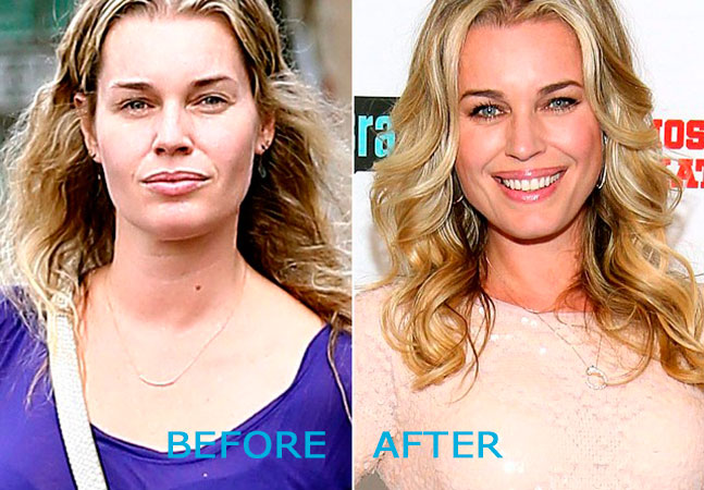 rebecca romijn plastic surgery photo - 1