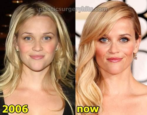reese witherspoon plastic surgery photo - 1