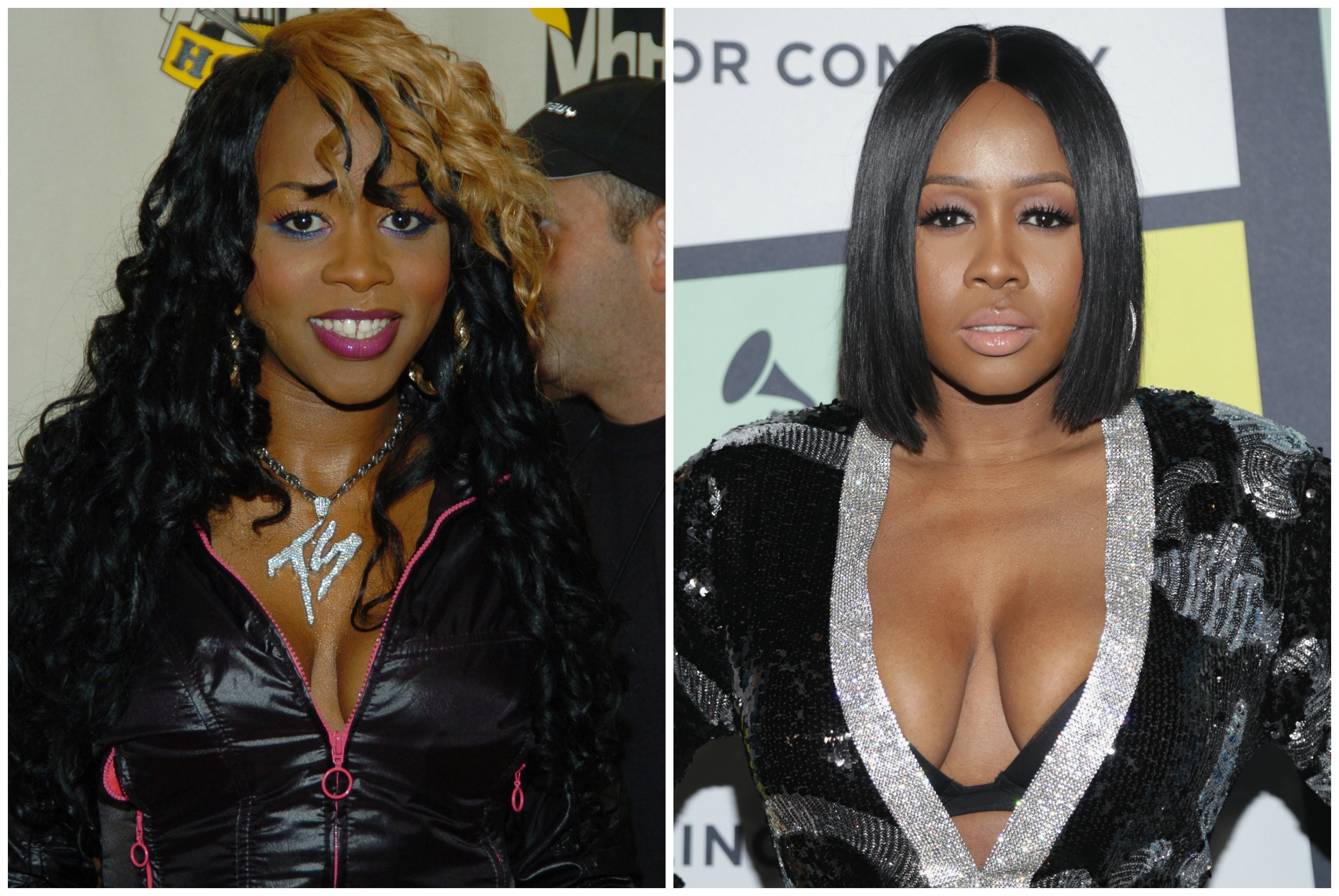 remy ma before and after plastic surgery photo - 1