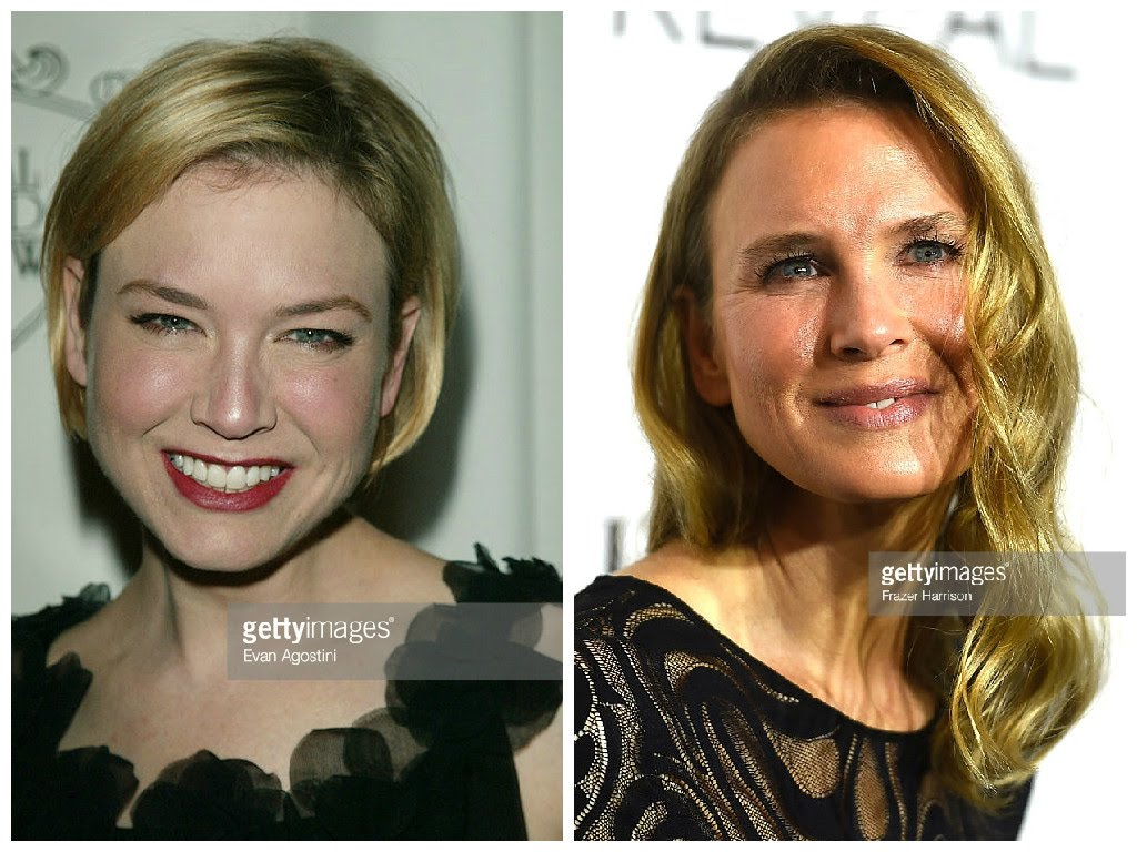 renée zellweger plastic surgery photo - 1