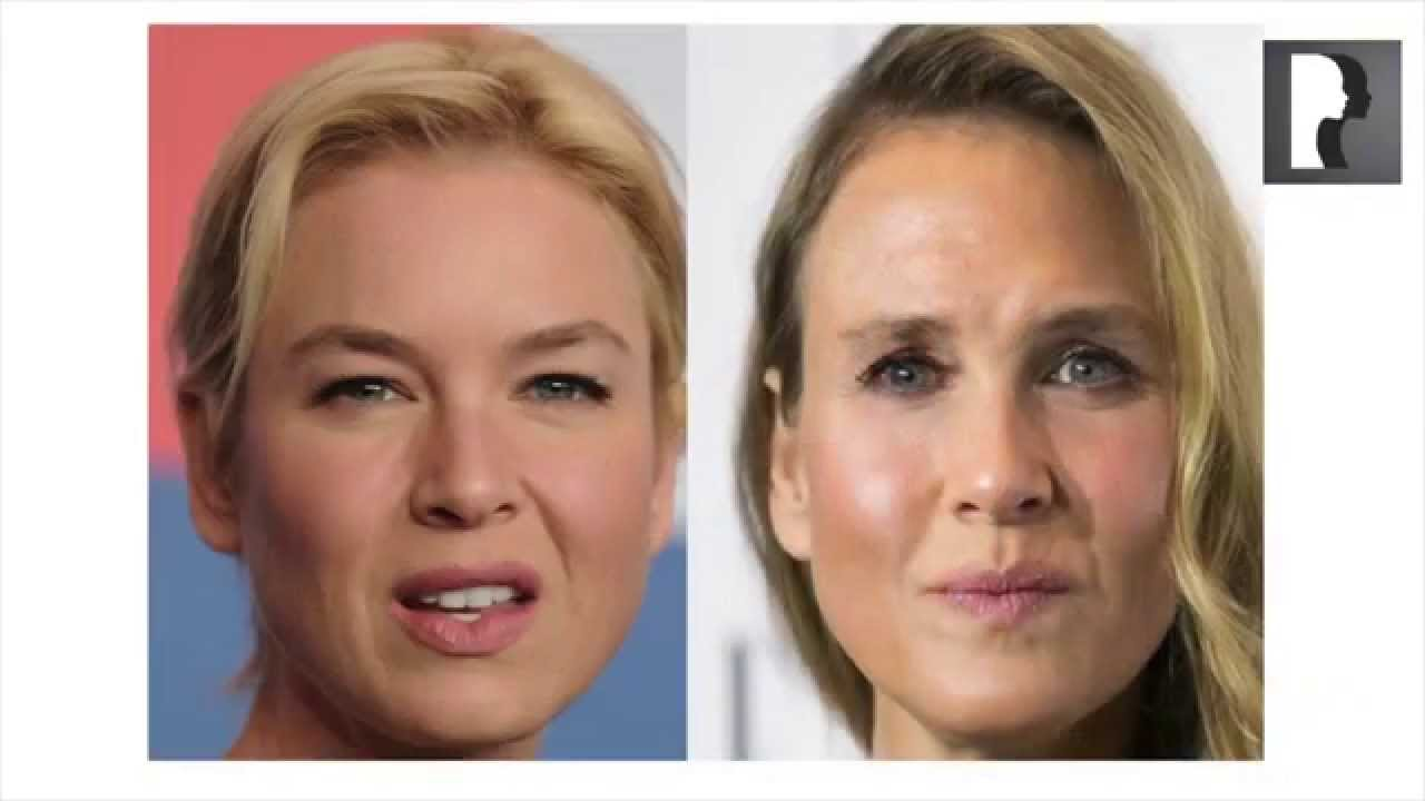 renee zellweger plastic surgery youtube photo - 1