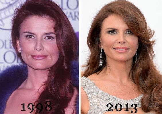 roma downey plastic surgery photo - 1