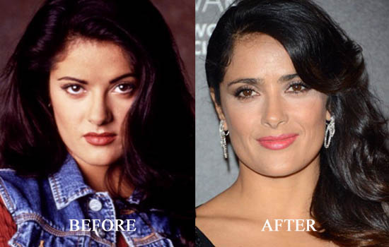 salma hayek plastic surgery photo - 1