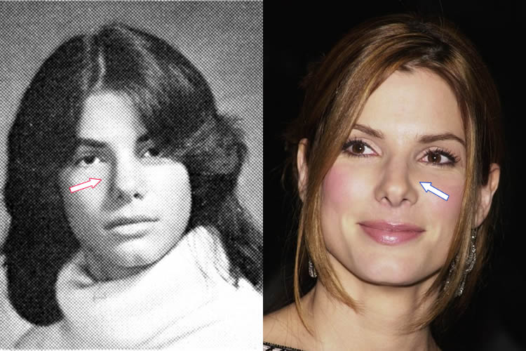 sandra bullock plastic surgery photo - 1