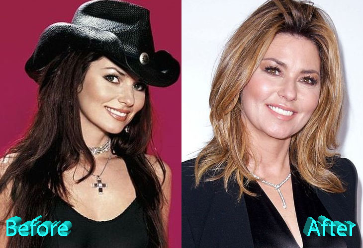 shania twain plastic surgery photo - 1