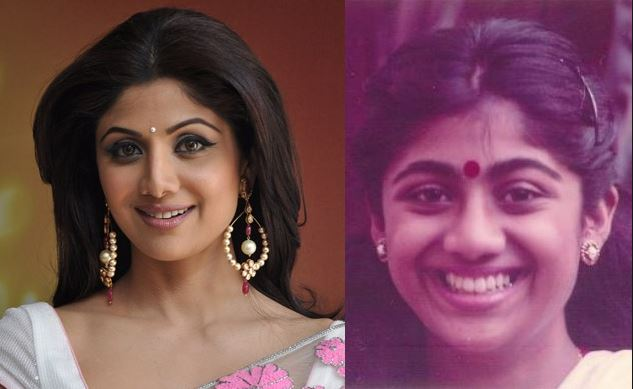 shilpa shetty plastic surgery photo - 1
