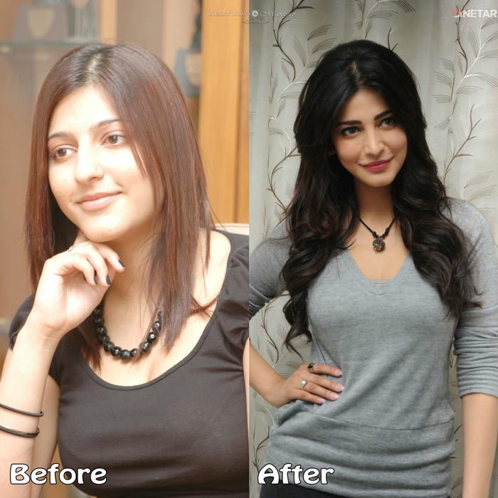 shruti hassan plastic surgery photo - 1