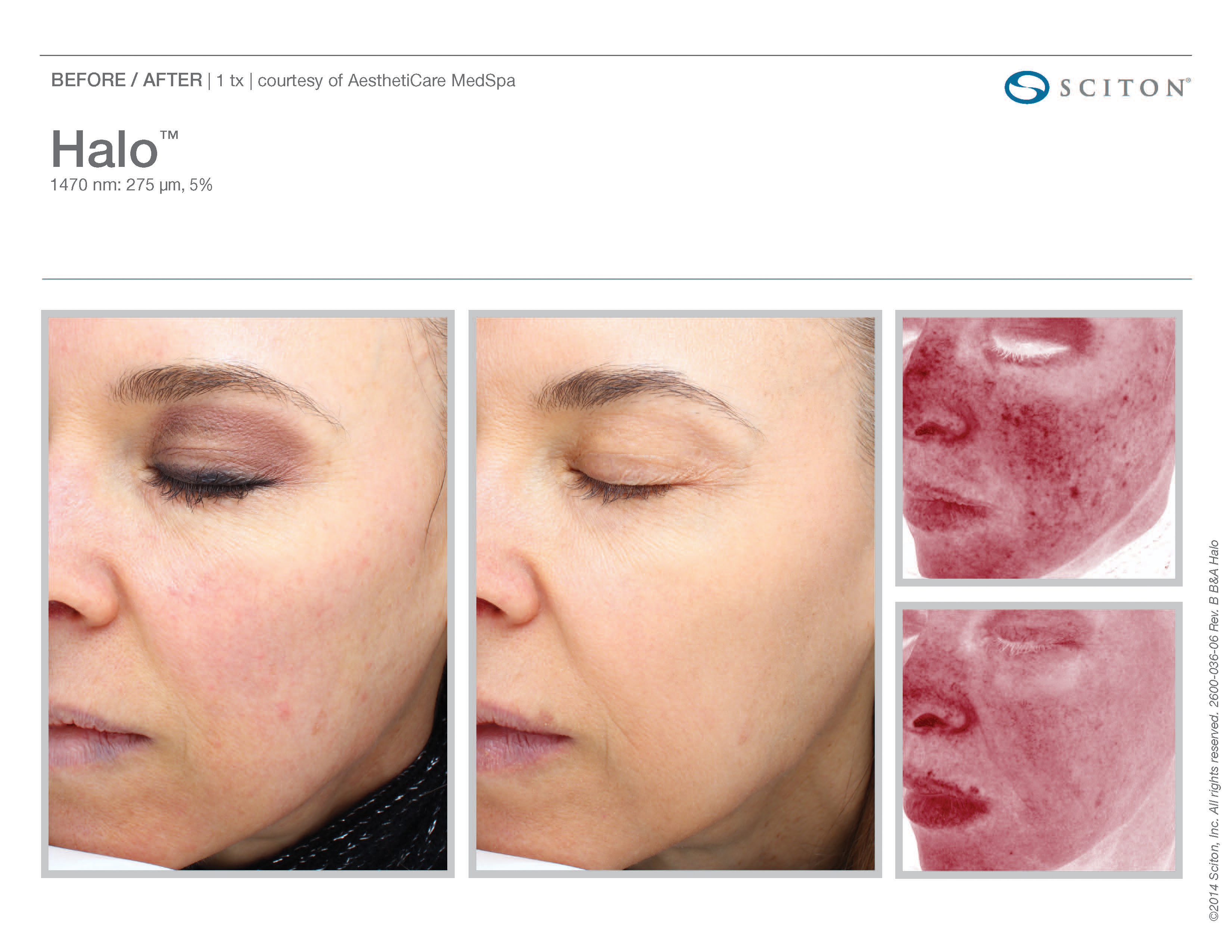 skin cosmetic surgery photo - 1