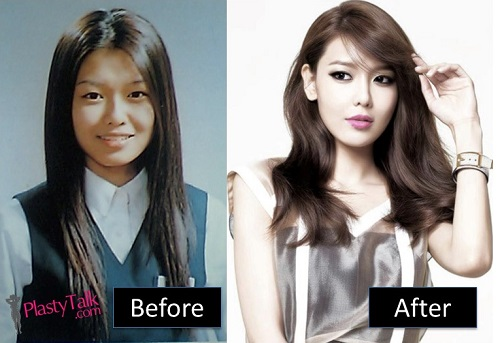 snsd plastic surgery photo - 1