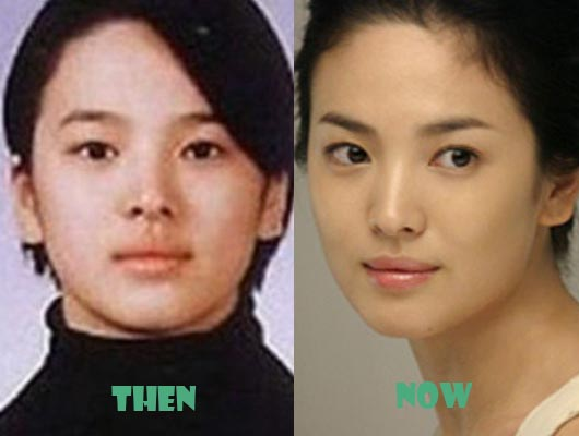 song hye kyo plastic surgery photo - 1