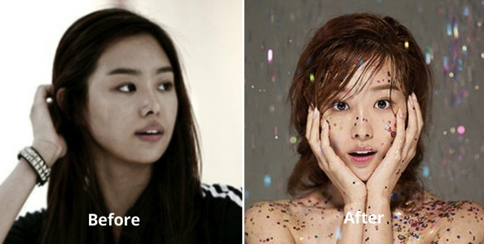 song ji eun plastic surgery photo - 1
