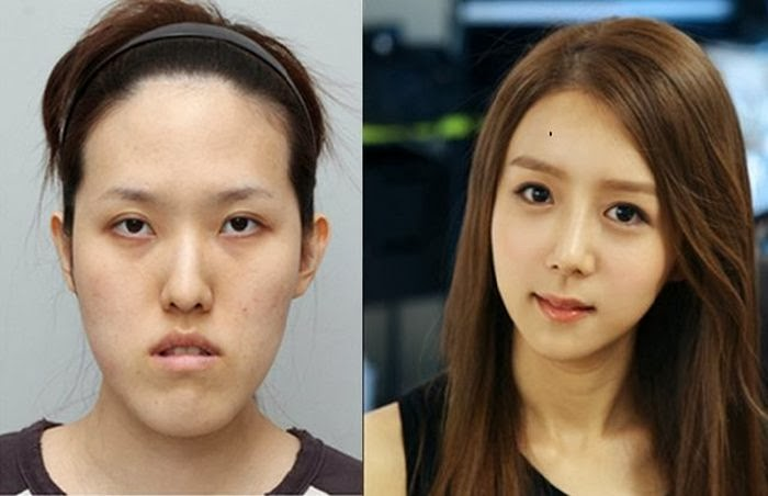 south korea plastic surgery photo - 1