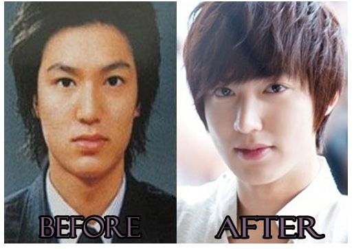 south korean plastic surgery photo - 1