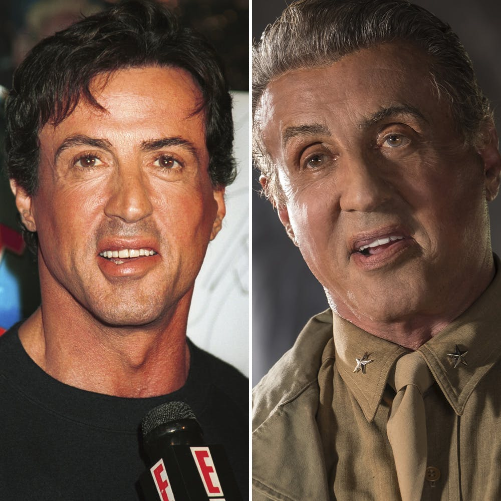 stallone plastic surgery photo - 1