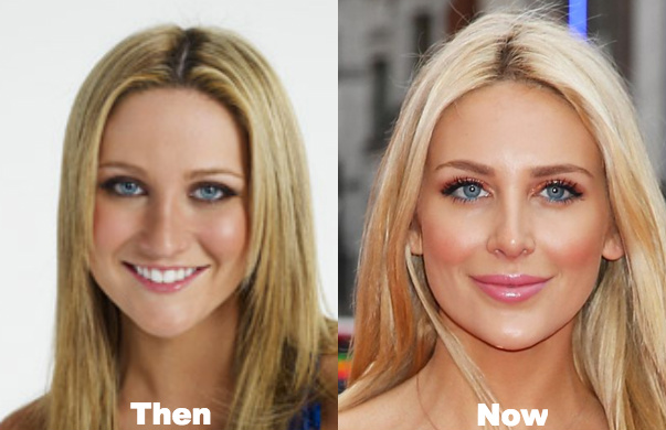 stassi plastic surgery photo - 1