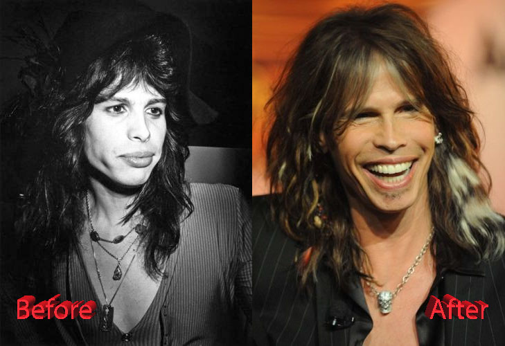 steven tyler plastic surgery photo - 1