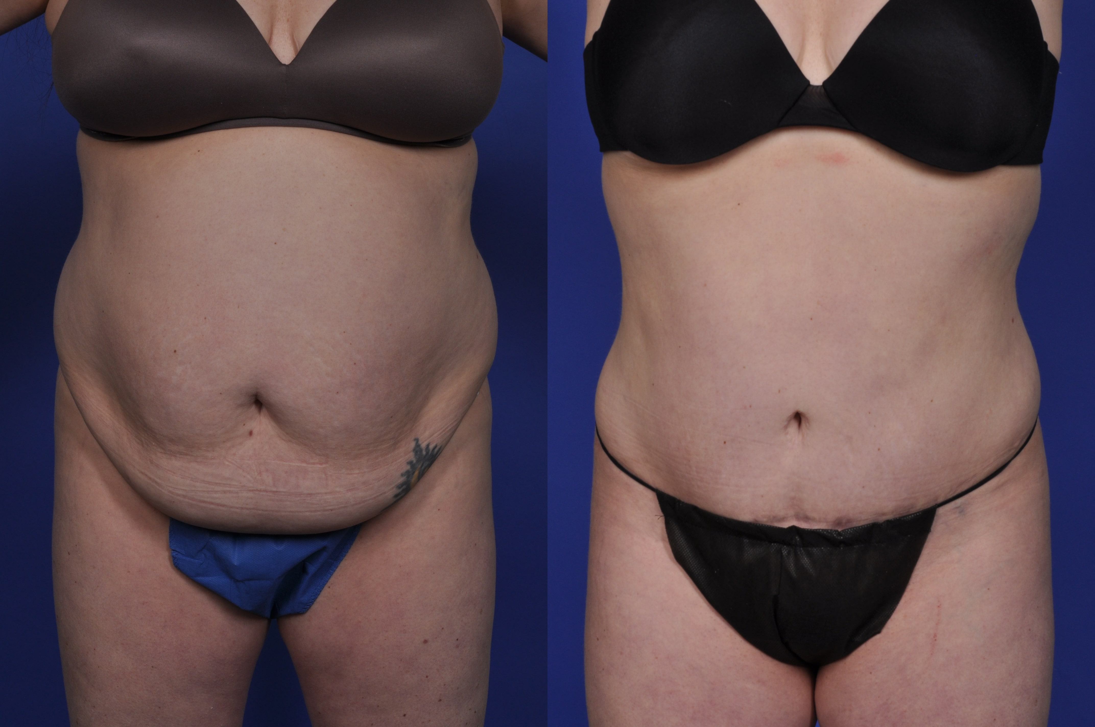 stomach plastic surgery photo - 1
