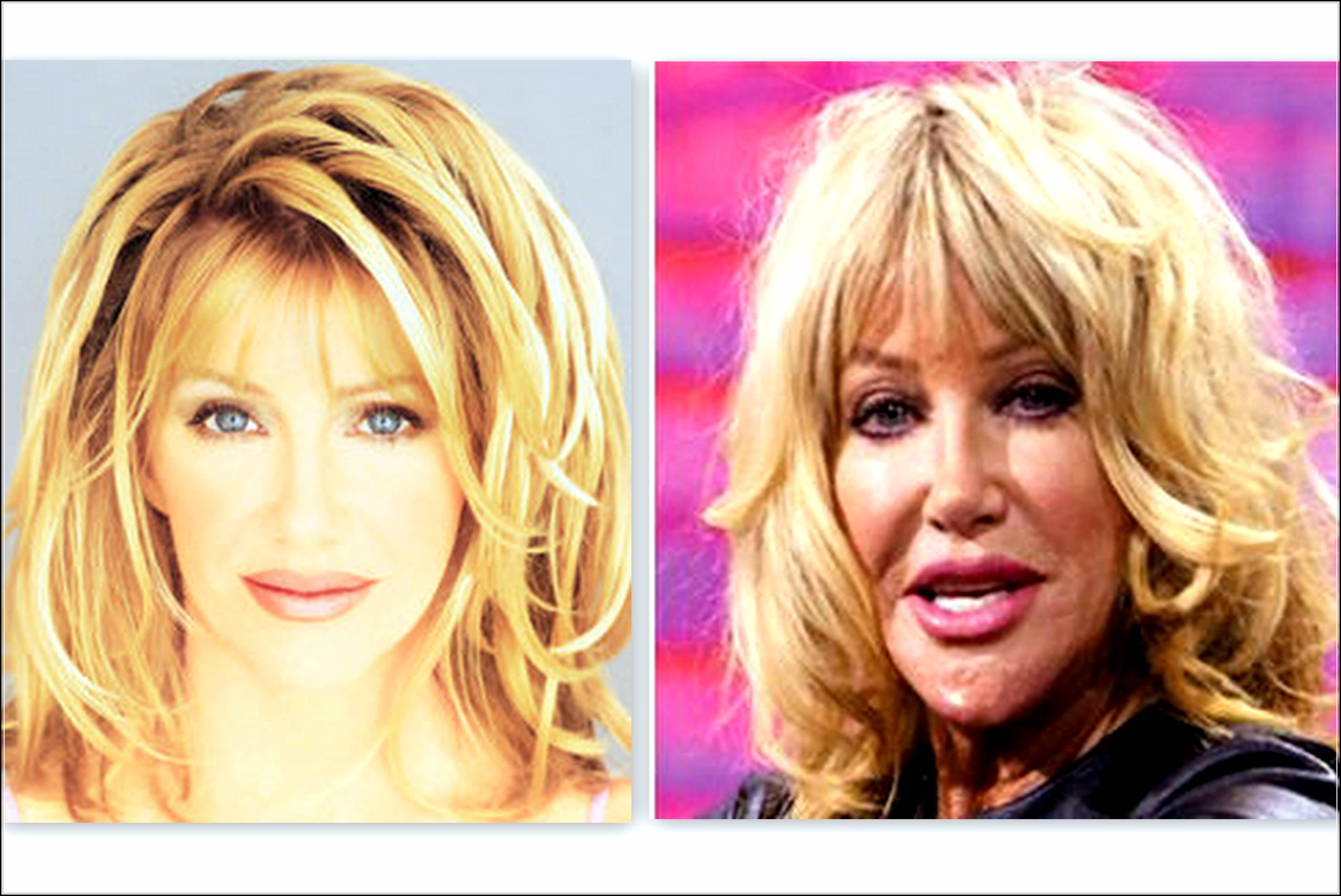 suzanne somers plastic surgery photo - 1