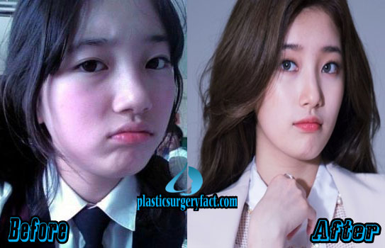 suzy bae plastic surgery photo - 1