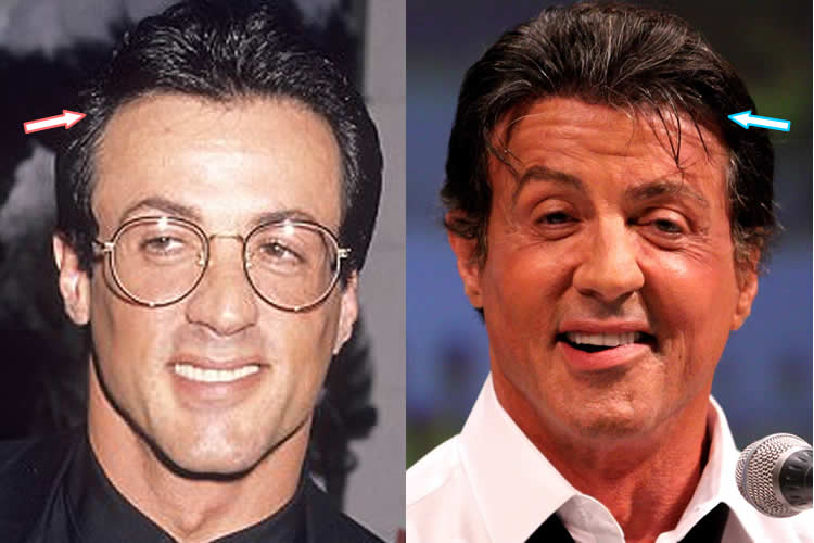 sylvester stallone plastic surgery photo - 1