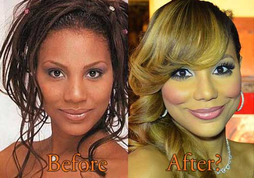 tamar plastic surgery photo - 1