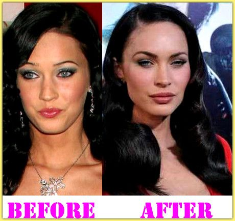 tatu baby plastic surgery photo - 1