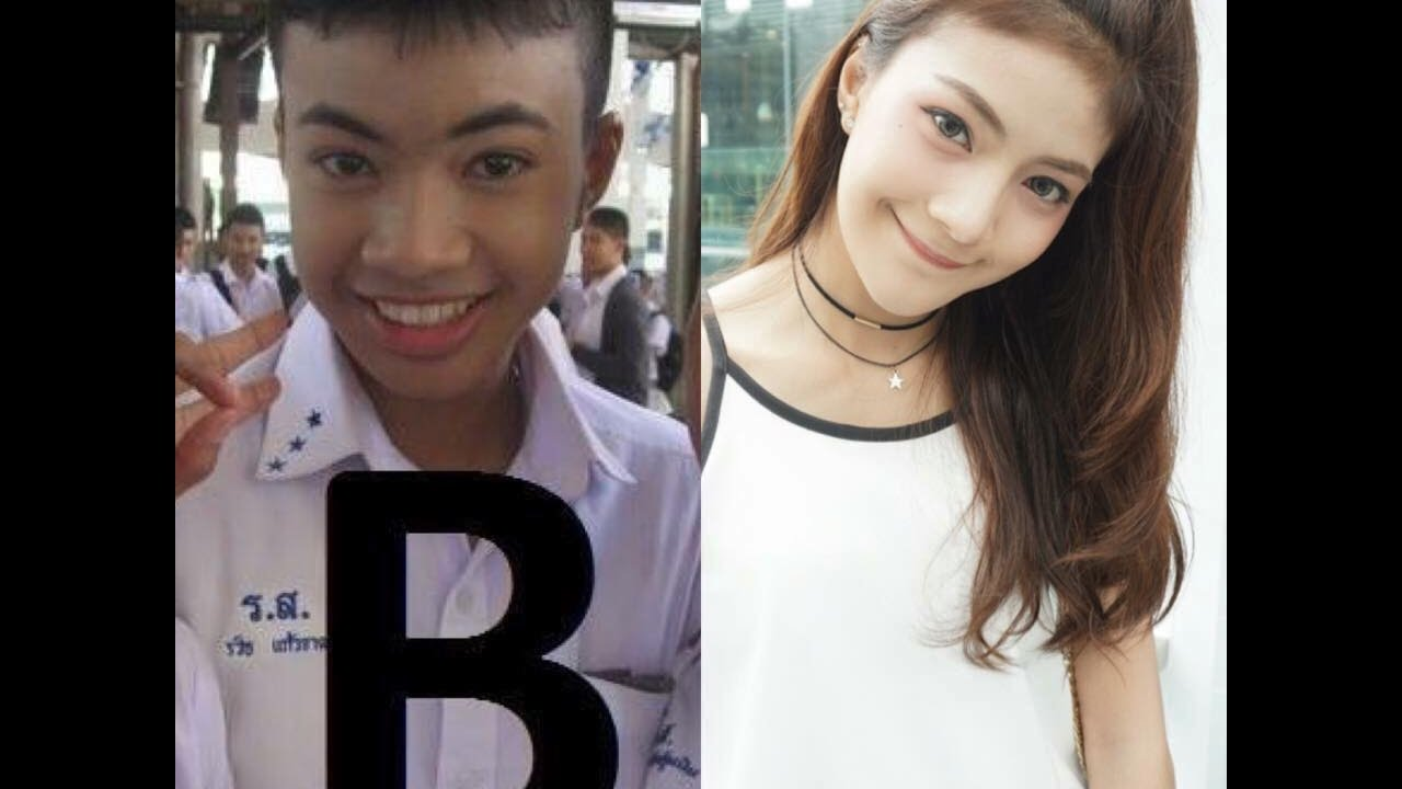 thailand plastic surgery before and after photo - 1