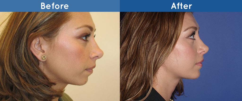the american board of plastic surgery photo - 1
