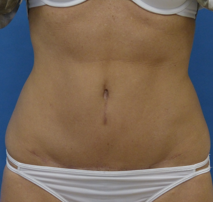 the american society for aesthetic plastic surgery photo - 1