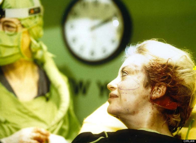 the artist orlan was the first person ever to undergo plastic surgery. photo - 1