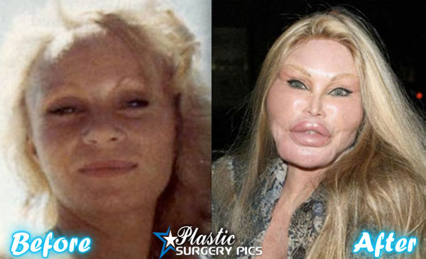 the cat lady plastic surgery photo - 1