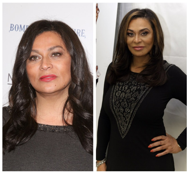 tina knowles plastic surgery photo - 1