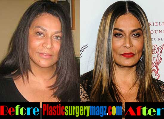 tina turner plastic surgery photo - 1