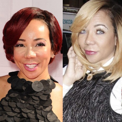 tiny harris plastic surgery photo - 1