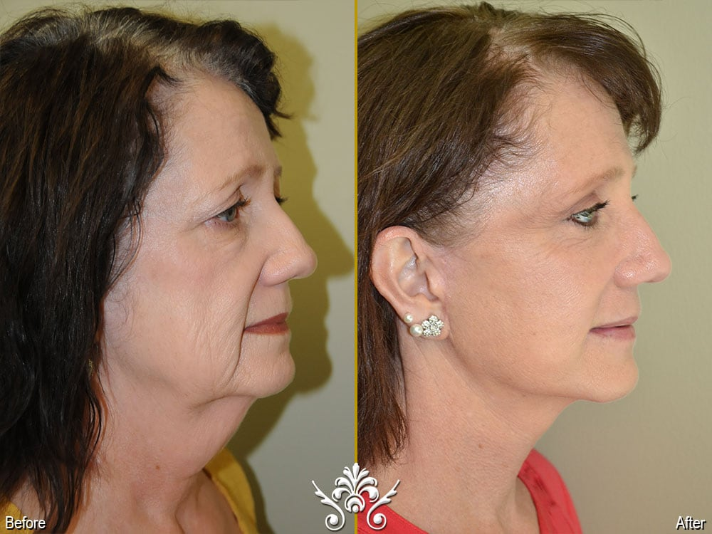 trivalley plastic surgery photo - 1