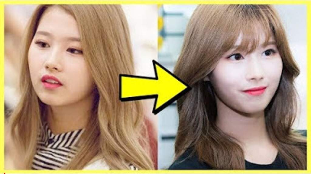 twice plastic surgery photo - 1