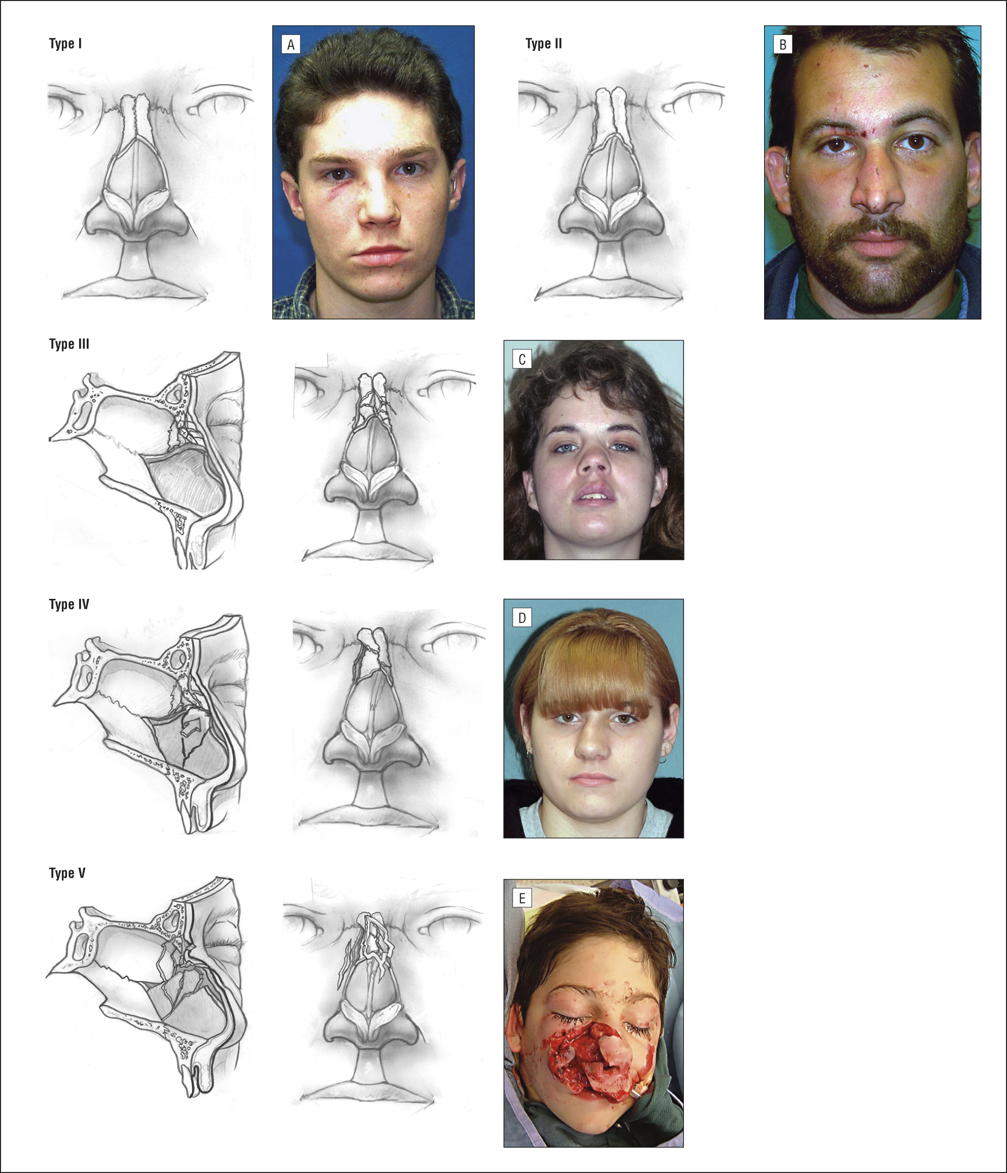 types of facial plastic surgery photo - 1