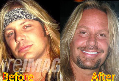 vince neil plastic surgery photo - 1