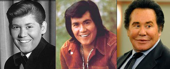 wayne newton plastic surgery photo - 1