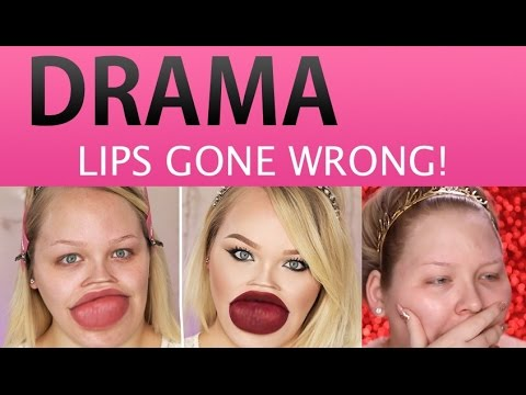 what is botched plastic surgery photo - 1