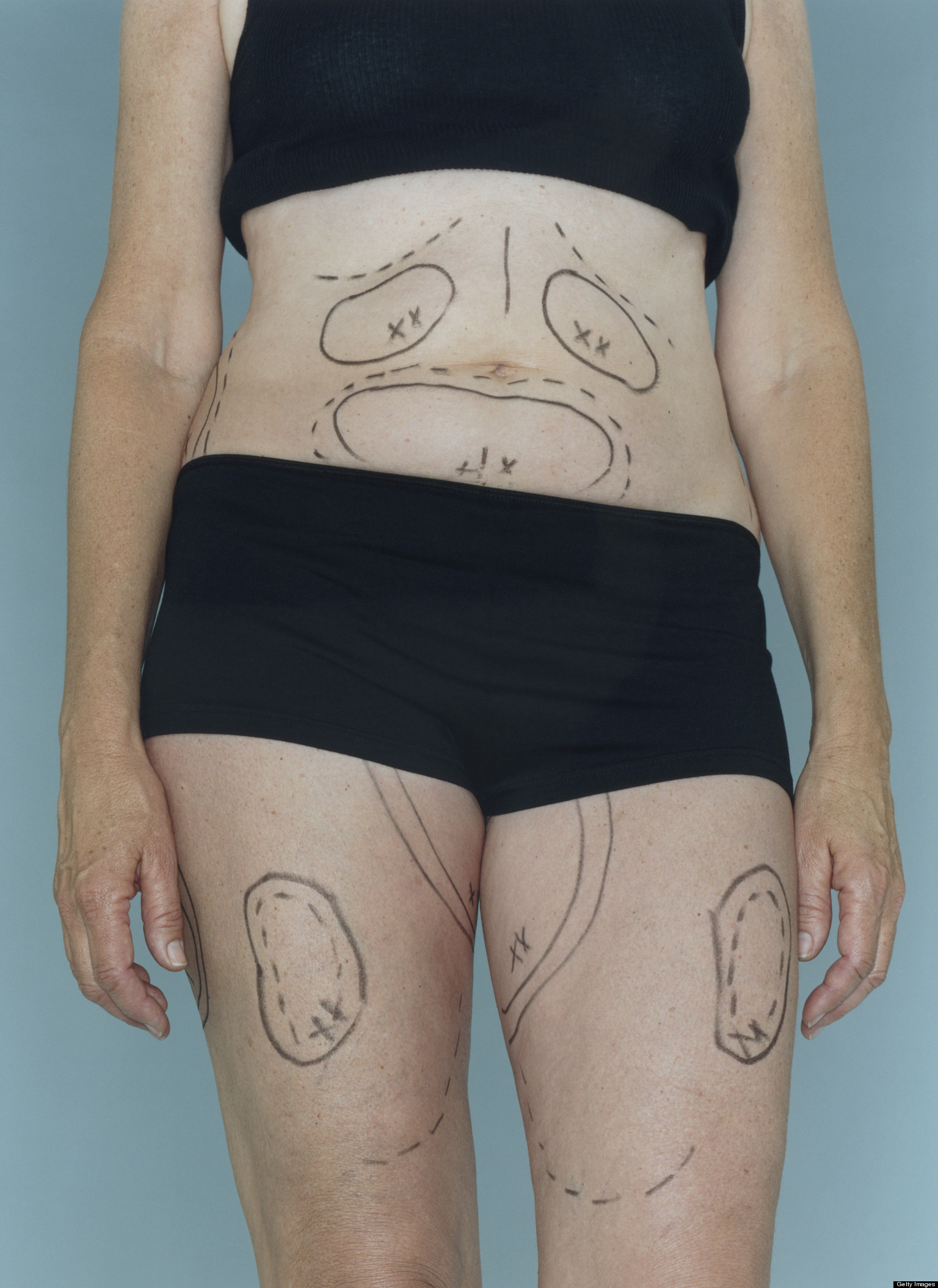 what is cosmetic surgery photo - 1